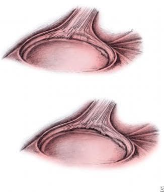 Upper left - Type I superior labrum anterior post