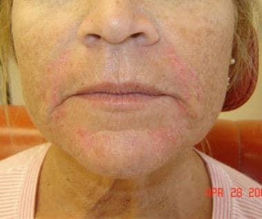 Patient 1. After photo. Dr. Bader injected CosmoDe