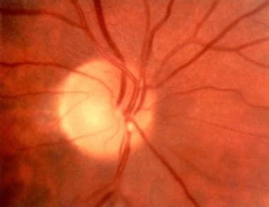 Calcium embolus on the optic disc.
