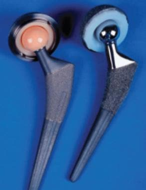 Ceramic Bearings In Total Joint Arthroplasty Background