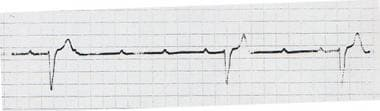 Complete heart block. Likely a Mobitz II block wit