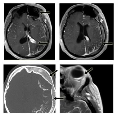 Postcontrast axial T1 images. These show leptomeni