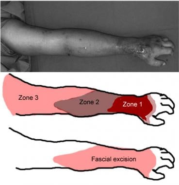 Illustration of zones of necrotizing fasciitis and