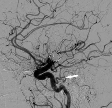 Персистирующей тройничной артерии. Артерии головного мозга Артерии головного мозга Артерии головного мозга 12312tn