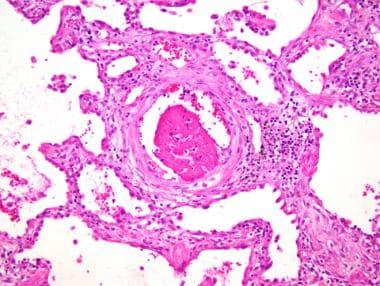 Organizing diffuse alveolar damage (DAD). Fibrinou