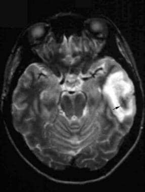 Axial T2-weighted image reveals left temporal lobe