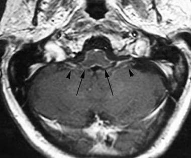 Axial T1-weighted image postcontrast at the level