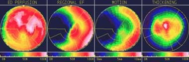 Polar maps can help identify abnormal findings on