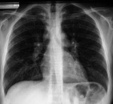 Posteroanterior (PA) chest radiograph in a 16-year