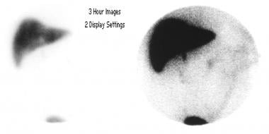 Cholescintigraphy (3-h delayed images in the anter