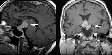 Sagittal (left image) and coronal (right image) T1
