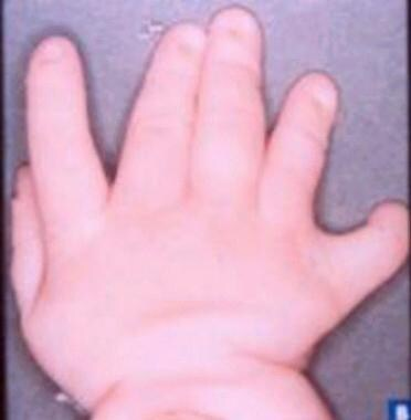 Hand of a patient (different patient than in the i