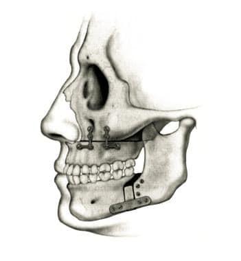 Maxillary-mandibular advancement in obstructive sl