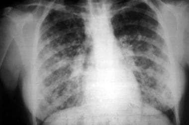 Acute pulmonary syndrome in a 16-year-old female a