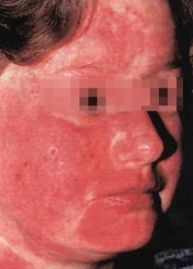 Erythema involving the malar area, forehead, and n