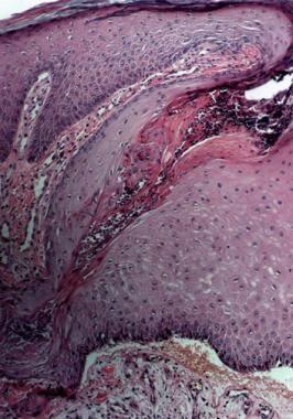 Histologic section of elastosis perforans serpigin
