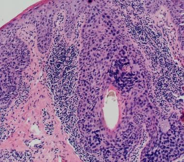Sebaceous carcinoma typically infiltrates the over