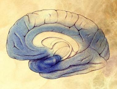 Severe Alzheimer disease. Image courtesy of NIH.