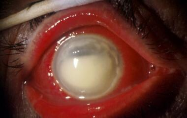 Alkali burn. Note the severe conjunctival reaction