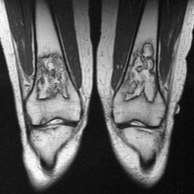 MRI confirming diagnosis of osteonecrosis; bilater