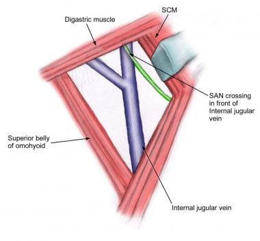 Relationship of internal jugular vein to the spina