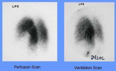 A segmental ventilation perfusion mismatch is evid