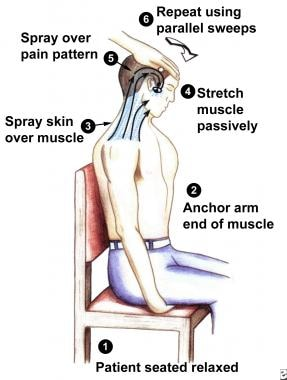 Sequence of steps to use when stretching and spray