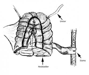 In an Indiana pouch, a urinary reservoir is create
