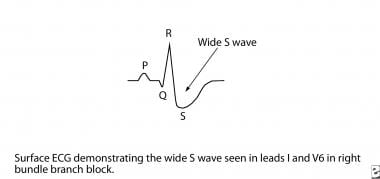 ECG demonstrates a wide S wave.