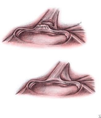 Upper left - Type III superior labrum anterior po