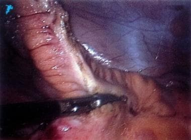 On this laparoscopic photograph, the mesentery of