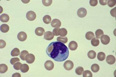 Blood smear showing spherocytosis, polychromatophi