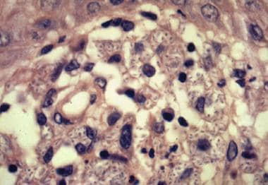 Biopsy rarely reveals the 6-mcg cigar-shaped yeast