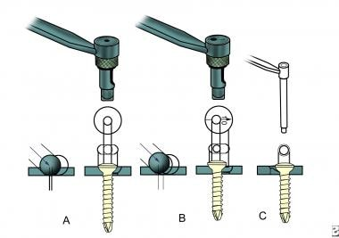 The application of the drill guides depends on the