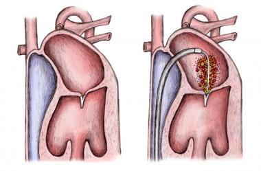 Percutaneous mitral valve repair via transseptal p