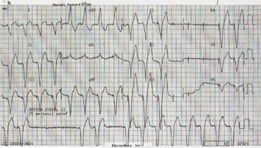 Intermittent periods of ventricular capture.