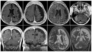 A case of bilateral Sturge-Weber syndrome (SWS; mo