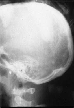 Atlantooccipital separation. Note the increased sp
