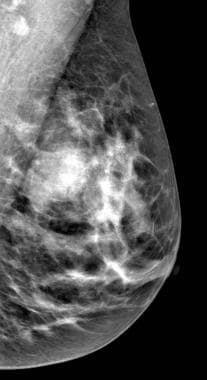 Mediolateral-oblique mammogram view also demonstra