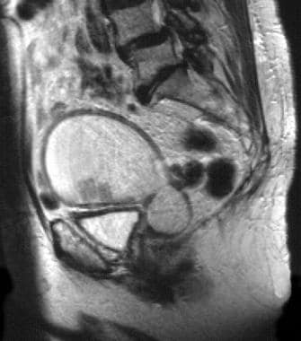 An 83-year-old woman with moderately differentiate