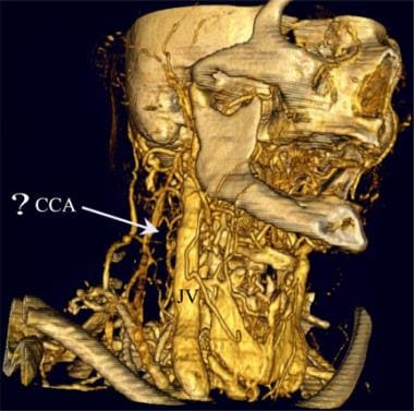 Surface-rendered 3-dimensional volume CT angiogram