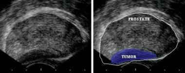 Transrectal sonogram of the prostate showing a hyp