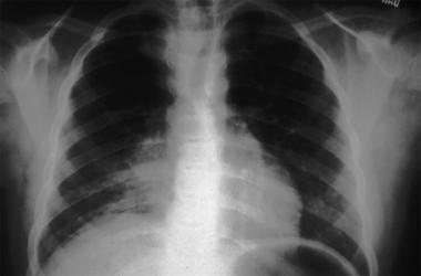 Fibrosing mediastinitis with mediastinal widening