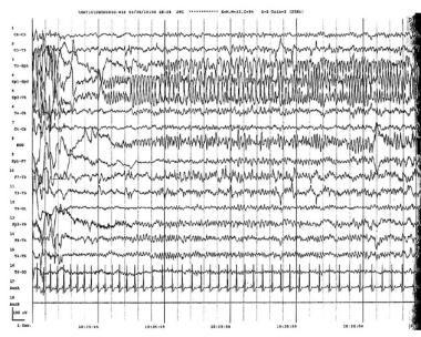 Focal status epilepticus. Electroencephalograph (E