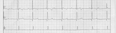 Third-degree atrioventricular block (complete hear
