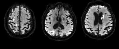 Cardioembolic stroke: Axial diffusion-weighted ima