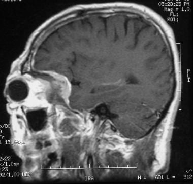 skull base tumors: background, history of the procedure, problem, Human Body