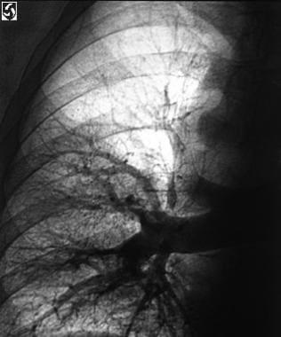 A pulmonary angiogram shows the abrupt termination