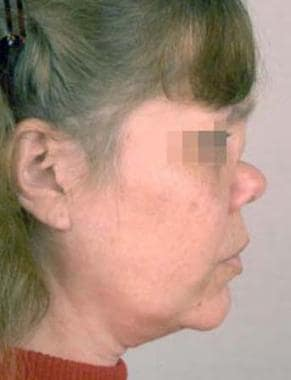 Woman with a subtype of midline granulomatous dise