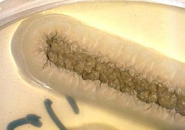 Moist cream-colored colonies with a central, dark,
